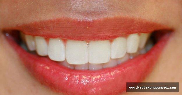 Çürük diş kalbe zarar veriyor