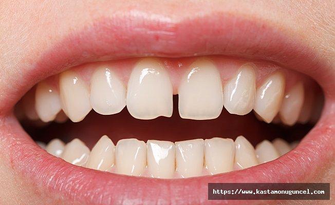 Ayrık dişler için çözüm Bonding tedavisi